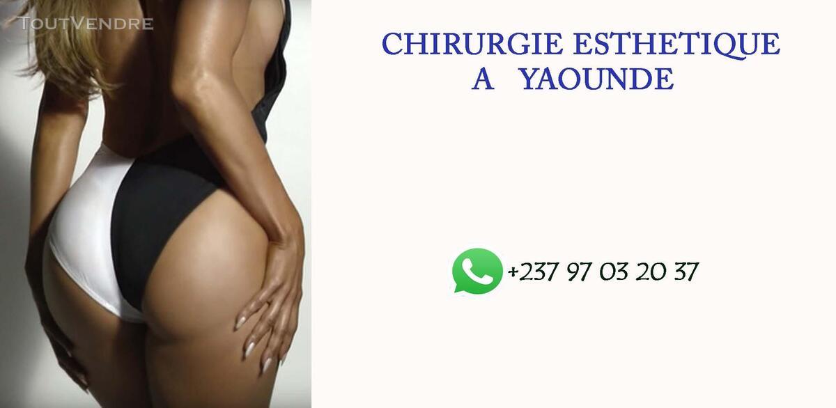 CHIRURGIE ESTHÉTIQUE AU CAMEROUN 639599698