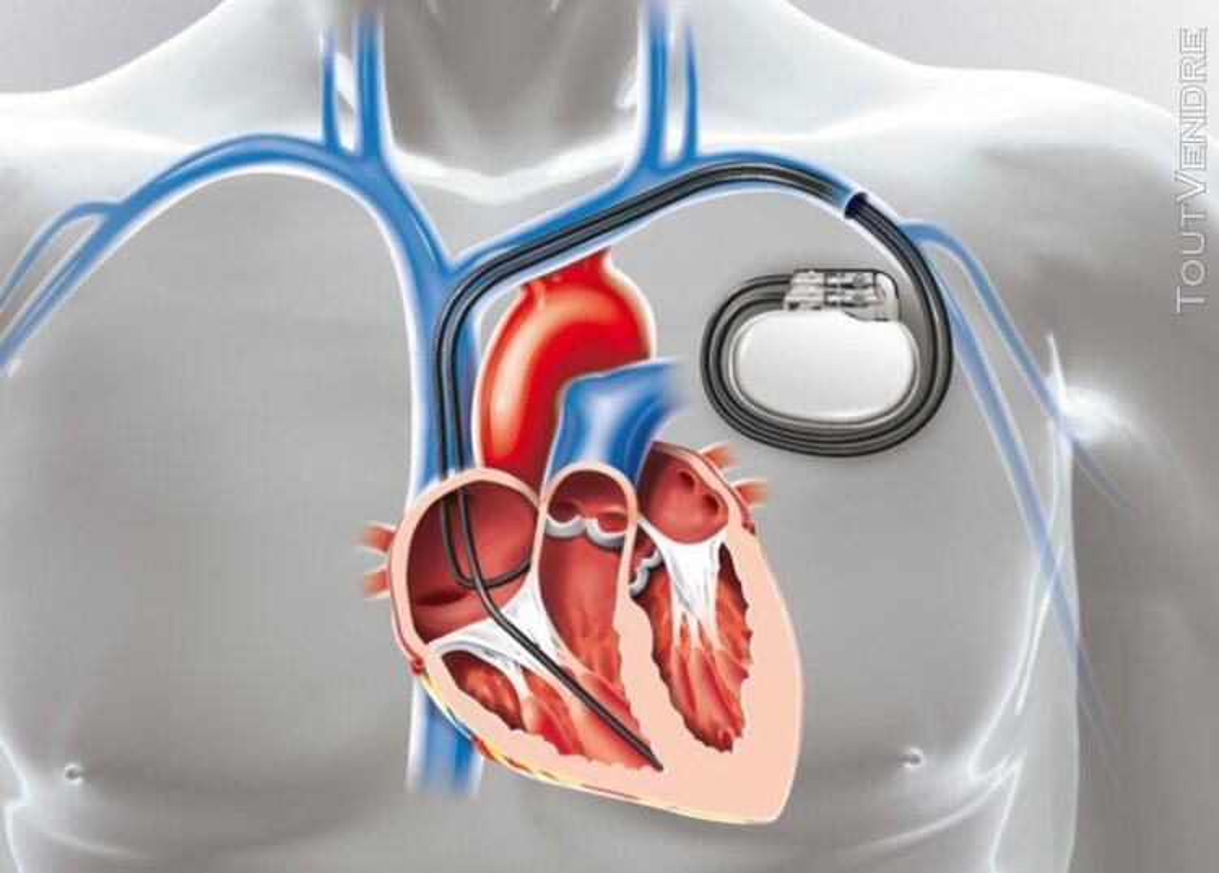 Implantation d'un Pacemaker 630832508
